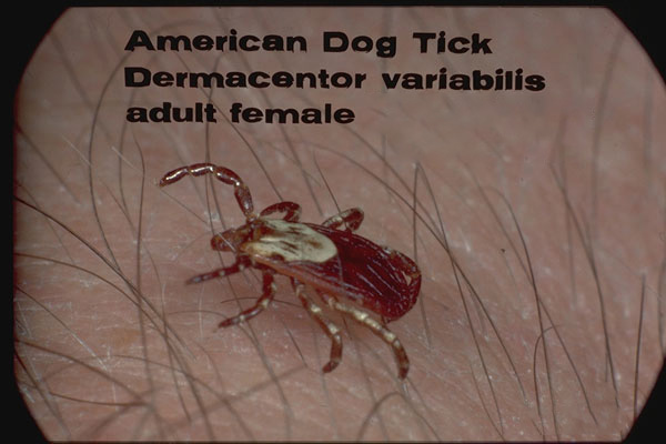 American Dog Tick